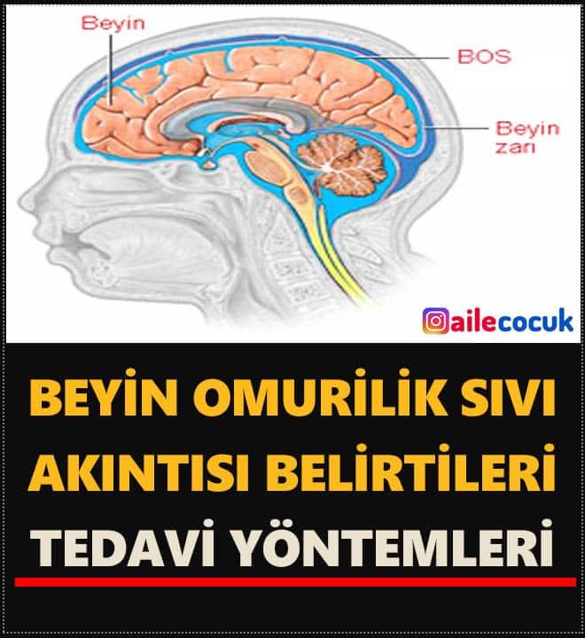 Beyin omurilik sıvısı akıntısı ve Burun akıntısı arasındaki ilişki 4