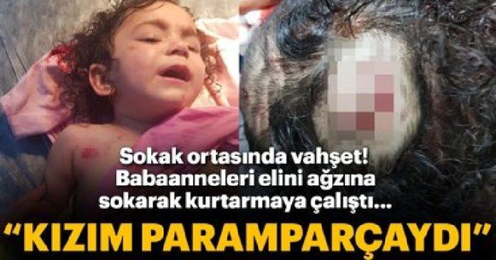 Rottweiler cinsi köpek saldırdığı minik Almira'yı parçaladı 5