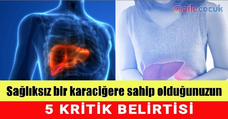 Sağlıksız bir karaciğere sahip olduğunuzun 5 belirtisi 3