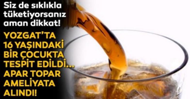 Aşırı gazlı içecek tüketimi nedeniyle delinen mideye operasyon 2