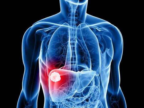 Karaciğerinizi Toksinlerden Arındıran En İyi Tarifler